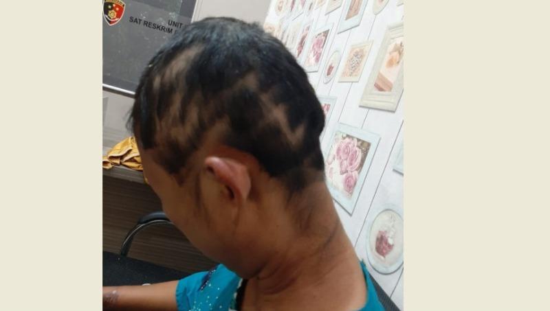 (Foto istimewa) SRN Korban Murka Suami Cemburu, Tampak Bekas Potongan Rambut Bekas Diduga Disiksa Suami nya